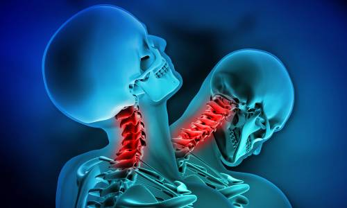Whiplash is an injury which may occur to the spine if the head is thrown forwards, backwards or sideways.