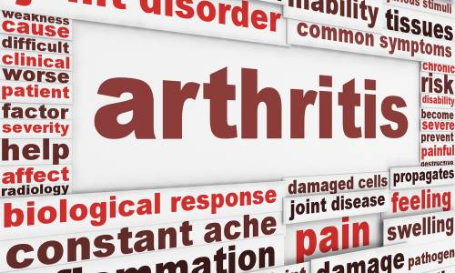 Physiotherapy is key to Arthritis Treatment