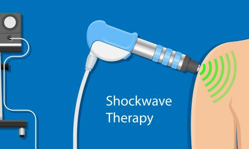 Radial pressure wave therapy (shockwave)