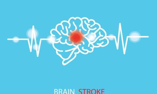 10 Health rules to follow to help prevent strokes